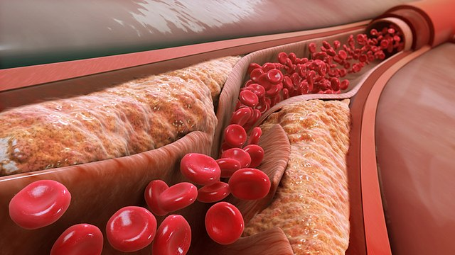 LDL have been associated with the progression of atherosclerosis. In the image, atheromas caused by the accumulation of LDL in the wall of the artery. Image: Manu5 - Wikimedia. http://www.scientificanimations.com/wiki-images/