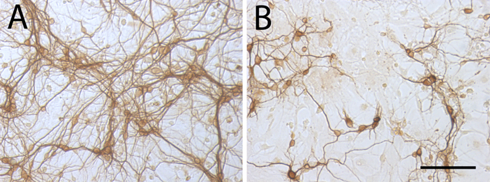In the image, damage due to neuroinflammation can be seen. In A, in vitro culture of neurons and glia, in which the neurons are marked.  In B, culture of neurons and glia, where neuronal death has occurred by glial activation. Image: IIBB / CSIC.